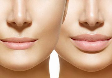 a pair of women with full lips